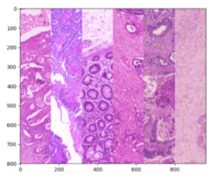 Chromatic normalization examples in stained colon sections